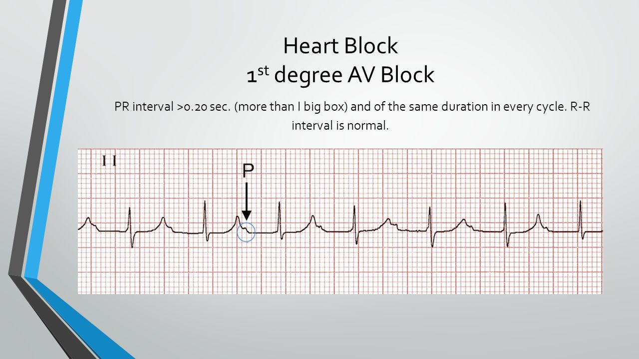 Qrs Depolarization Ventricle