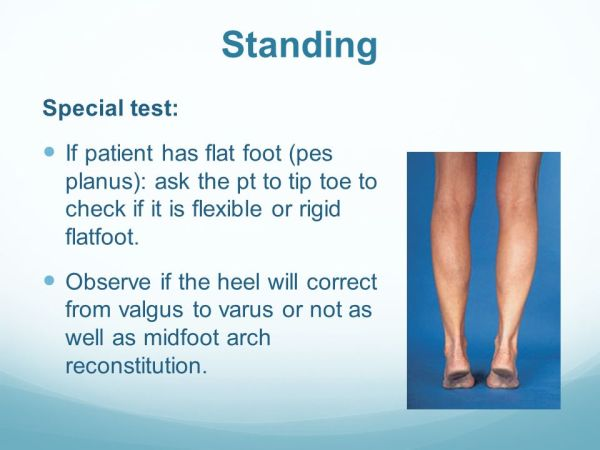 Foot and Ankle Examination - ppt video online download