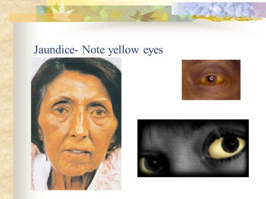 Pictures Of Eyes With Liver Cirrhosis