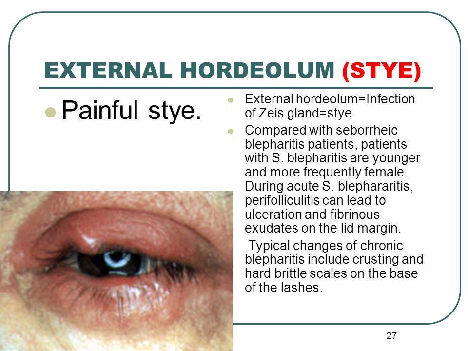 Upper Eyelid Anatomy Illustrations