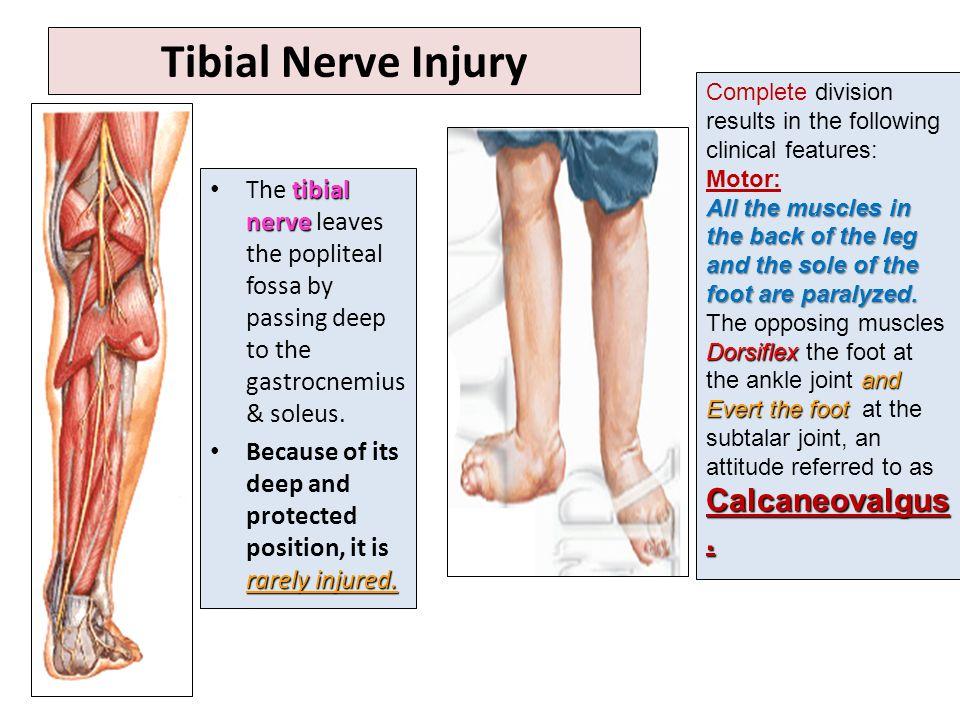 Major Nerves Of Lower Leg
