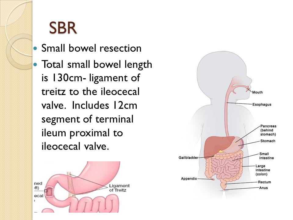 Small Bowel Treitz Ligament