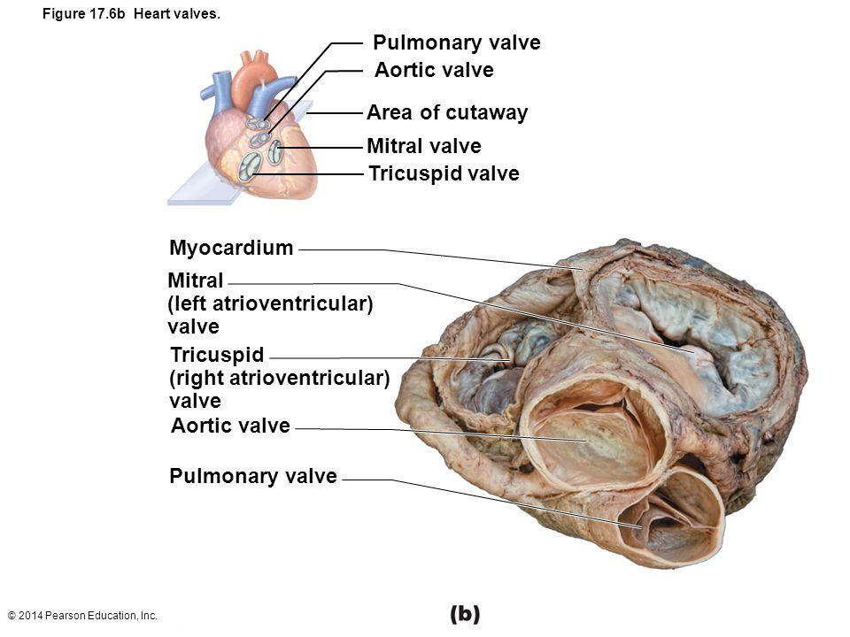 Cadaver Heart Anatomy