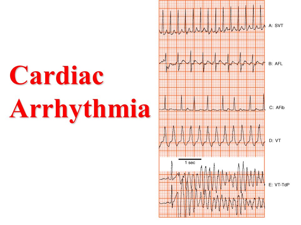 Image result for Cardiac Arrhythmia