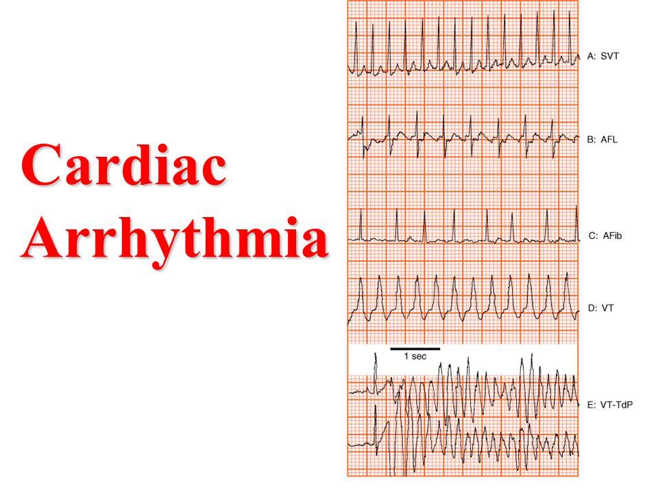 Image result for Cardiac Arrhythmia