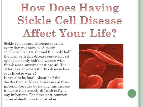Sickle Cell Disease By Samantha. - ppt download