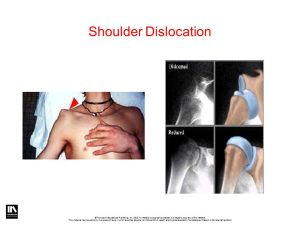 Joint Mechanics & Joint Injuries  ppt video online download