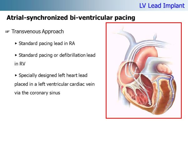 permanent cardiac pacing overview of devices and - 960×720