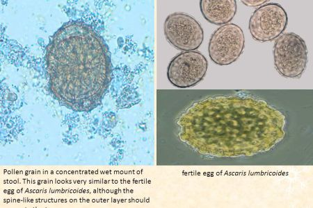 Counting of Helminthes Eggs   ppt video online download Ascaris lumbricoides Embryonated Egg  19 Pollen