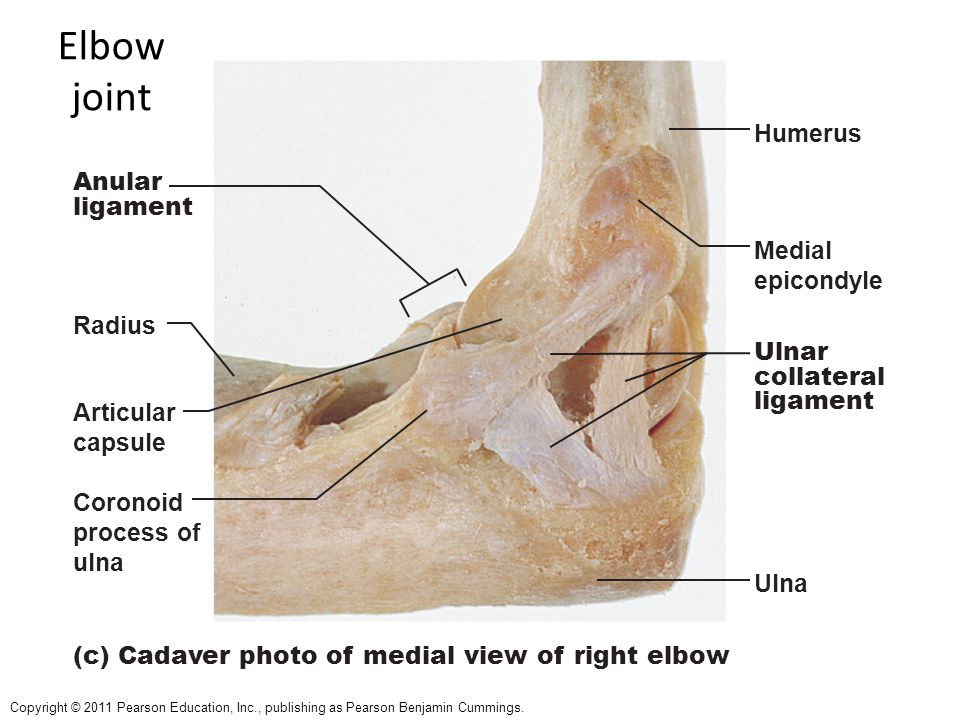 Radial Collateral Ligament Tear Elbow