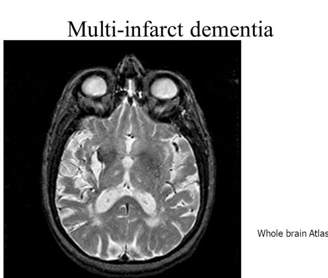 Multi Infarct Dementia