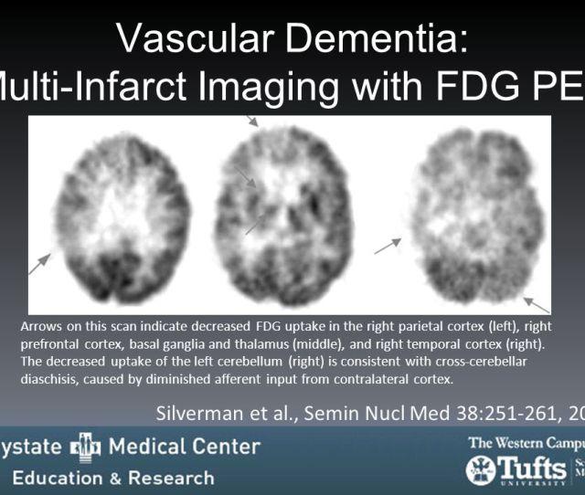 Vascular Dementia Multi Infarct Imaging With Fdg Pet