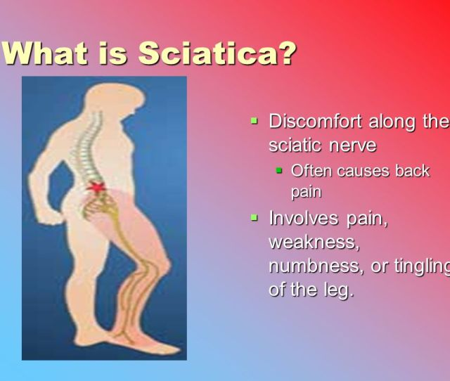 What Is Sciatica Discomfort Along The Sciatic Nerve
