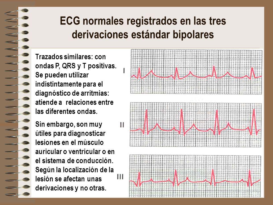 Resultado de imagen para Electrocardiogramas normales registrados en las tres derivaciones bipolares estándar de las extremidades