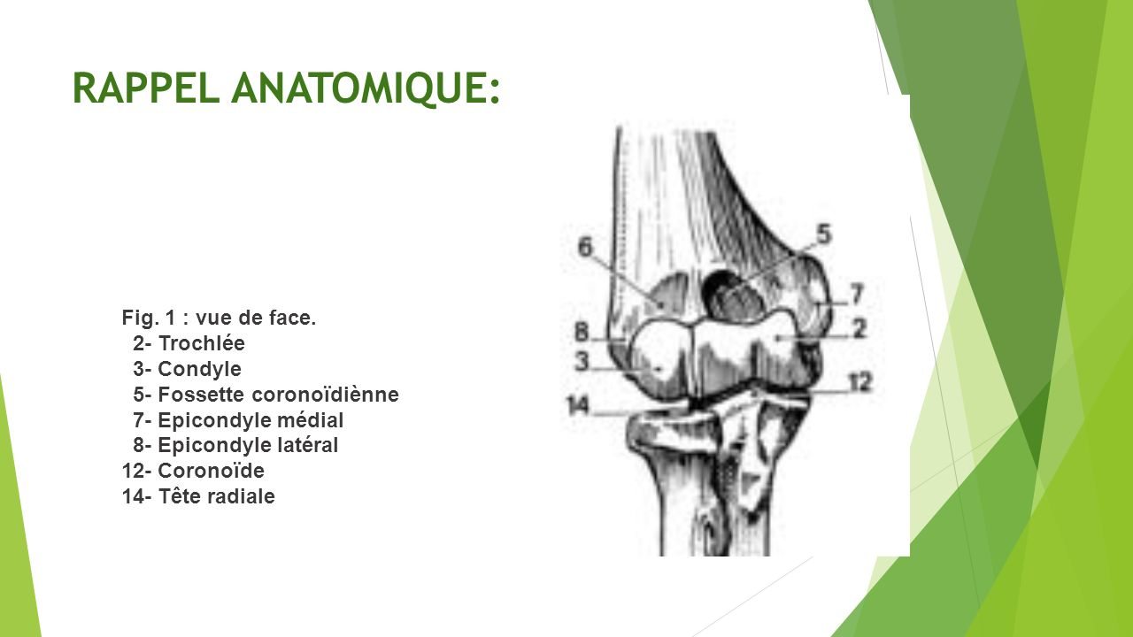 Comminuted Distal Humeral Fracture