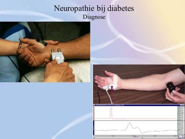 De tintelende voet Diabetische neuropathie ppt video