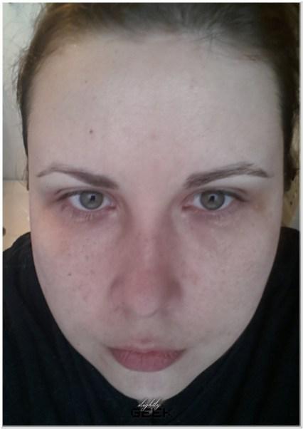 2 dni po zabiegu - bez miakijazu