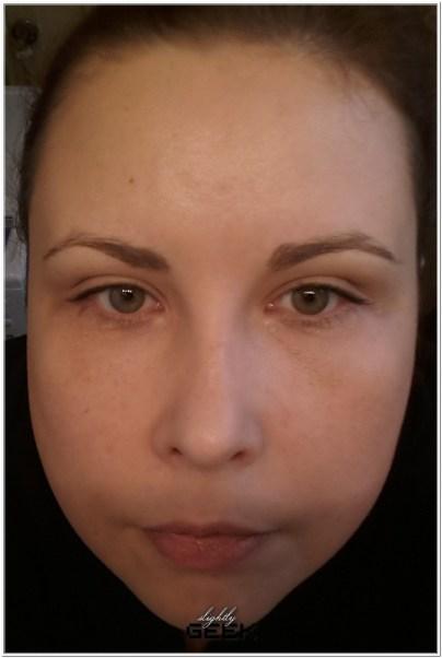 2 dni po zabiegu - w makijazu