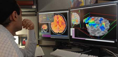 fMRI(functional magnetic resonance imaging, 기능적 자기 공명 영상) 이미지를 살펴보는 의사의 모습.