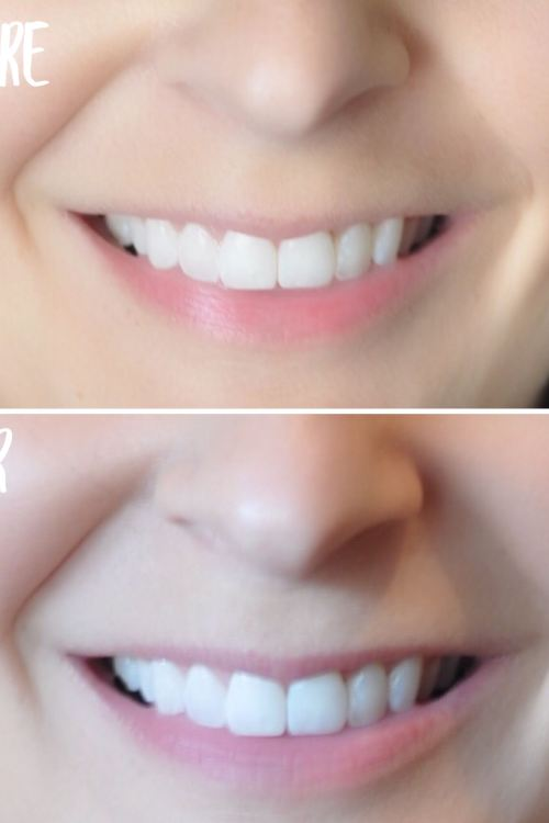 Smile Brilliant – Product Review