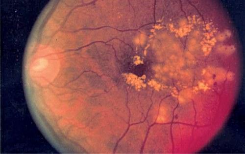 Diabetic retinopathy can be analysed using AI