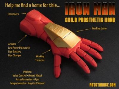 E se la protesi per i bambini fosse come la mano di Iron Man?