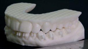Quét 3D trong Nha khoa và Chỉnh hình 2
