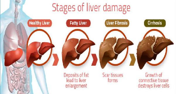 liverstages