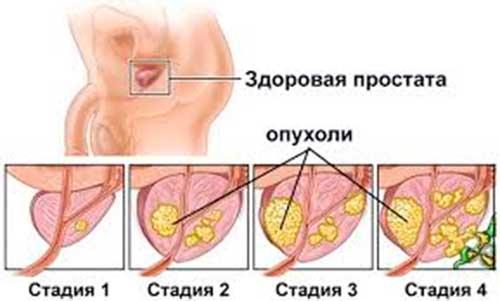 A hiperplázia fókusza a prosztatában