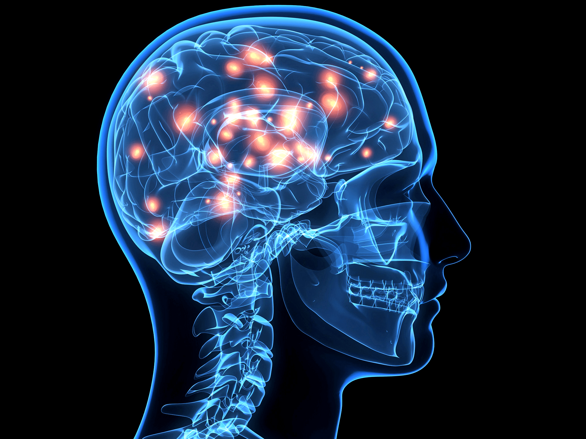 Why A New Definition Of Addiction As A Brain Disease