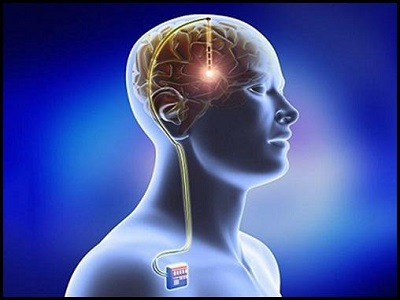 North America to Dominate Neurostimulation Devices Market During Forecast Period – TechSci Research