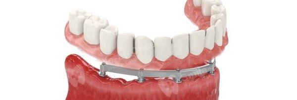 ALL-ON-6 имплантация в стоматологии Москвы. Цена и отзывы ...