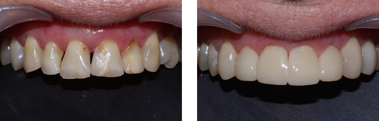 Black Triangle Teeth