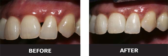 image of black triangle teeth bonding