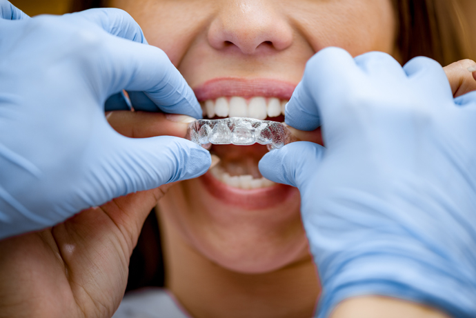 image of braces-for-adults