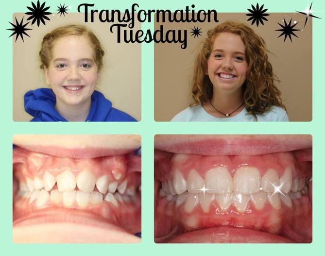 Before and After Braces in Goodlettsville, TN