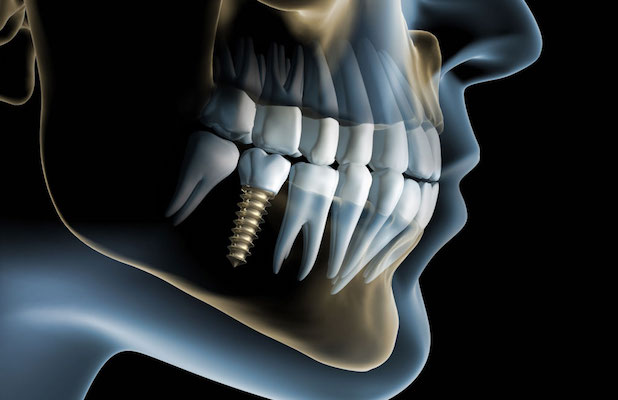 General Dentistry, North Las Vegas, Teeth whitening, orthodontics, dentists, dental, dentist, root canal, crowns, extractions