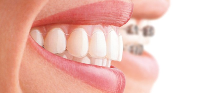 Orthodontics-invi-braces