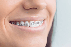 Woman with braces smiling