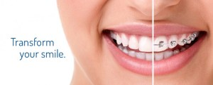 orthodontist-metal-braces
