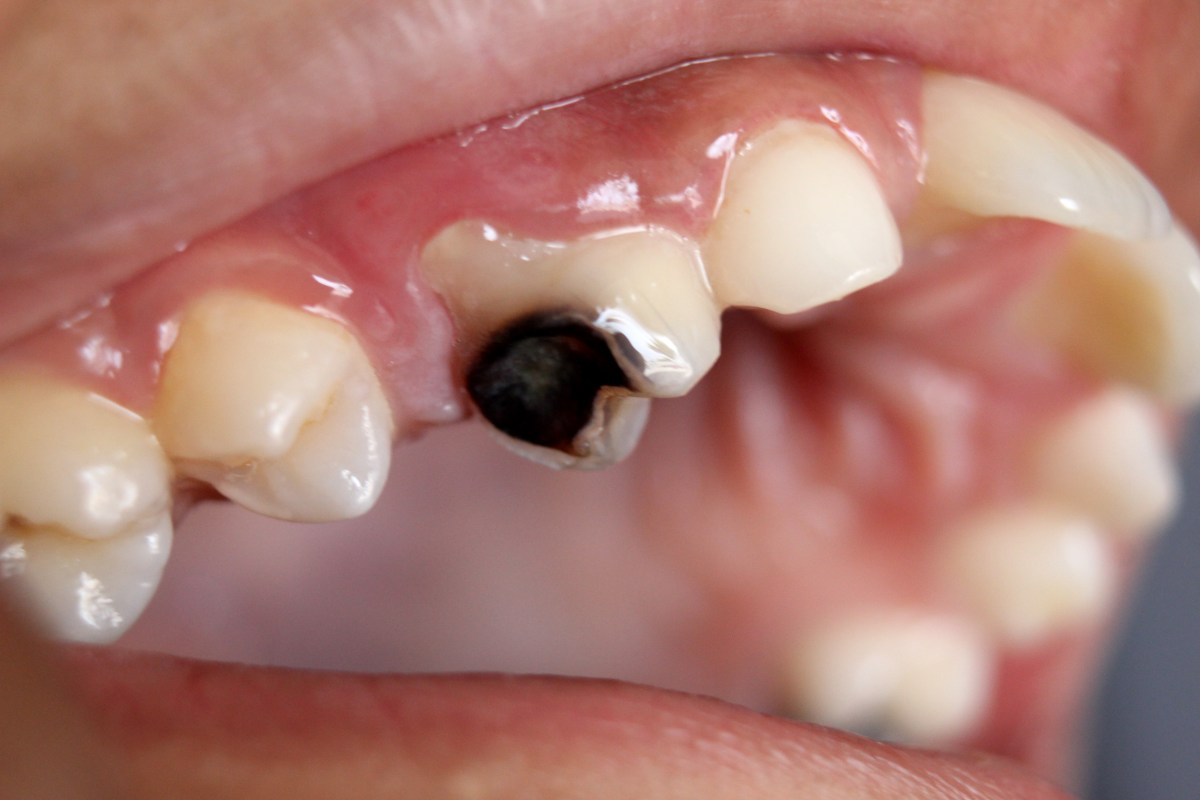 Dental caries (Tooth Decay or Cavities)-Oldest known disease of mankind