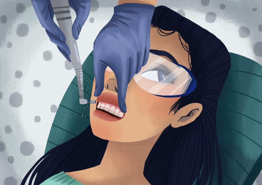 teeth-cleaning