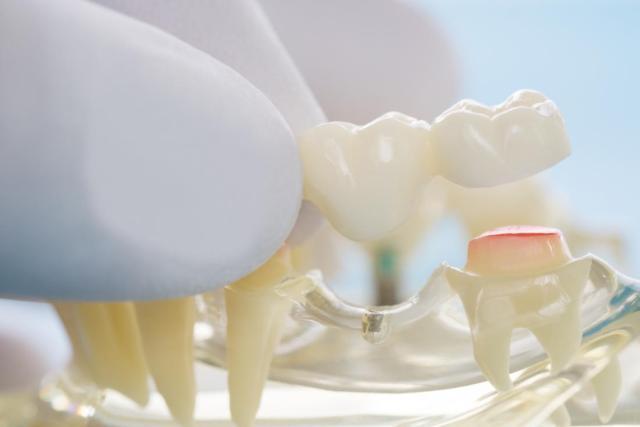 gloved fingers holding a dental bridge.