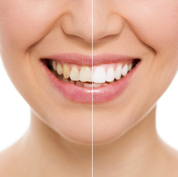 Before and after bleaching or whitening treatment, isolated