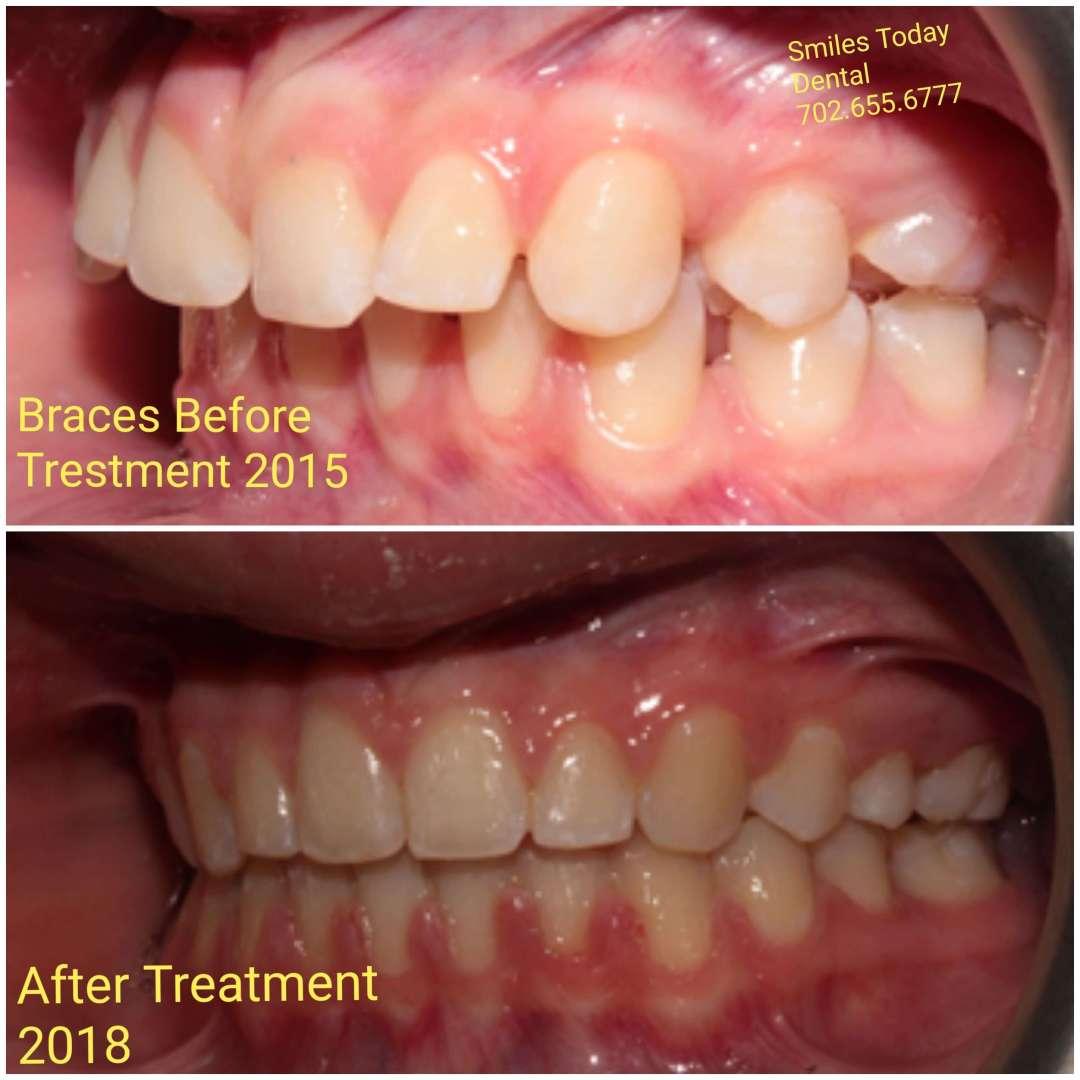 braces Before after photo 2015-2018 heather macias