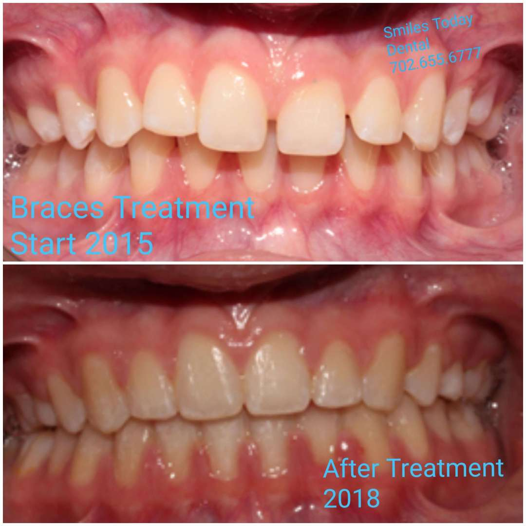 braces before and after photo 2 2015-2018 heather macias