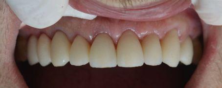 Dental makeover-Μετά
