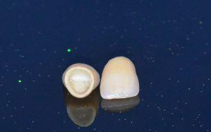Οδοντικες θηκες Πειραιας