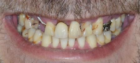Dental makeover-Πριν
