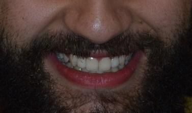 αισθητικη οδοντιατρικη